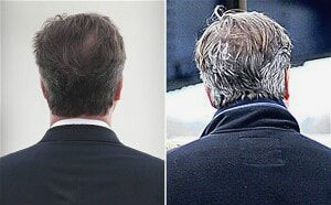 David Cameron Grey Hair